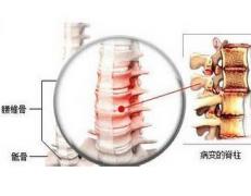得了强直性脊柱炎需要忌口什么